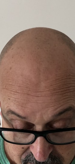 Baldness Solution- Smp, in My Experience. Pub-4684700343977382