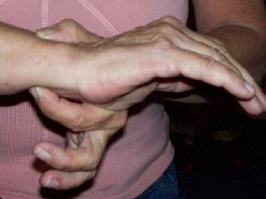 Simple pressure as indicated in the picture can cause a decubitis ulcer over time.