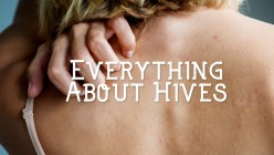What Causes Hives and How to Treat Them