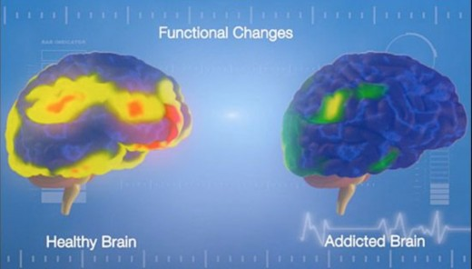 fMRI of the brain in addiction: activity is heightened in the reward circuitry and decreased in the cortex.