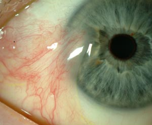 Reprinted from http://www.linklaterwarren.co.uk/images/eye-pterygium.jpg