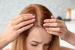 Tips for Hair Loss Prevention