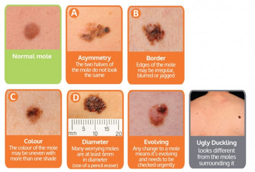 The ABCDE guide to the signs of Melanoma.