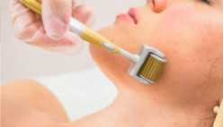 How to Use a Derma Roller - What to Know Before You Buy
