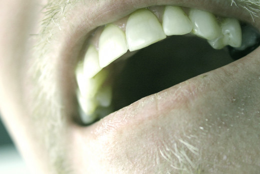 Dental implants makes a clear difference when it comes to teeth.