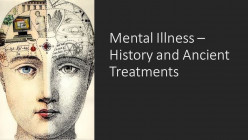 Mental Illness: History and Treatments From Ancient Times to the 19th Century