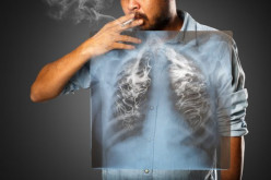 Lung Disease Symptoms and Treatment