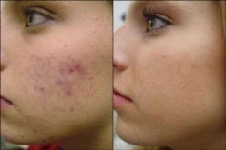 Acne Treatments – Acne Home Remedies – Essential Oils to Treat Acne - Miracle Acne Cure