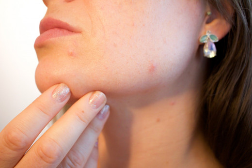Acne can be troublesome at any age.