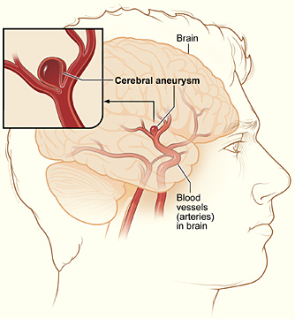 An aneurysm is the swelling of the wall of a blood vessel.