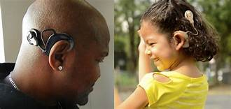Cochlear Implant on an adult and a child