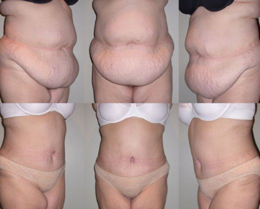 weight loss surgery no scars amy