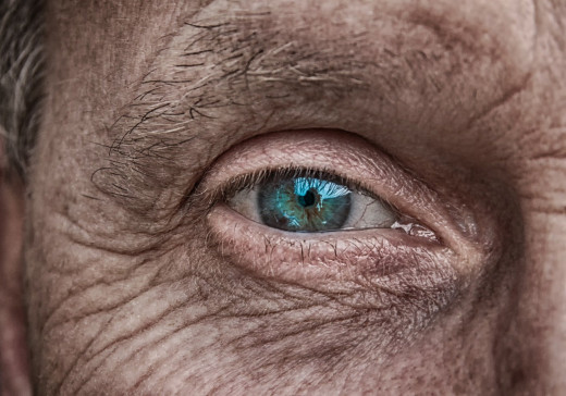 wrinkles,an obvious sign of aging.