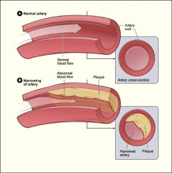 Key Information About Atherosclerosis