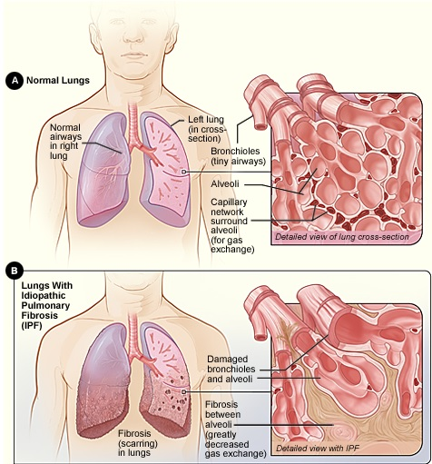 Pulmonary Fibrosis: A Sketch
