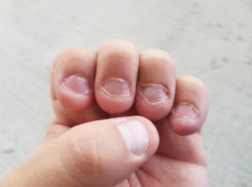 Extreme nail biting is a bad habit that this article's author conquered. Always keeping nails painted ended the desire to bite/chew them went away, within one month.