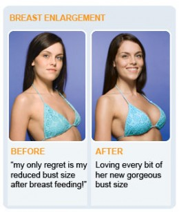 breast augmentation before after photos