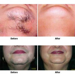 Picture of the results laser hair removal.