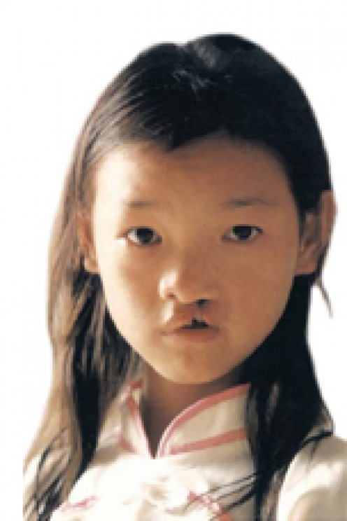 Yi Yun before surgery.