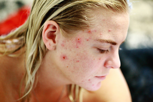 Which Medications Should I Avoid halting Acne Development