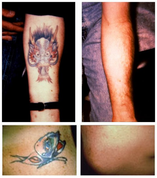 Before & After Using TCA for Tattoo Removal