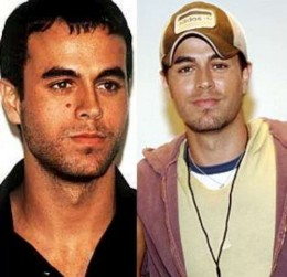Enrique Iglesias Mole Before and After