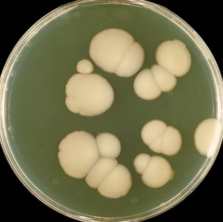 Hard to believe that these little blobs generate all the unpleasant symptoms of candida.