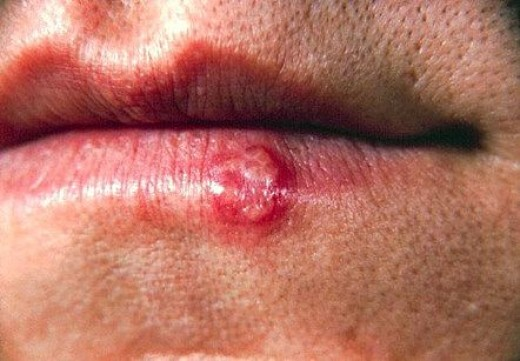 Stages of a Cold Sore Scab | HubPages