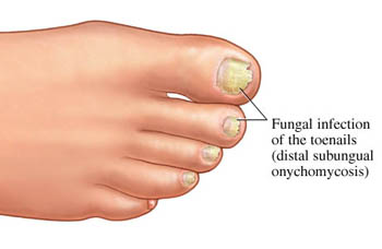 Reprinted from http://toenailfungustreatments.com/