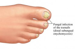 Toenail Fungus Home Remedies: Get Rid of Ugly, Thick Nails
