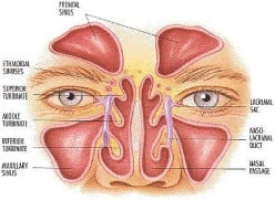Balloon Sinuplasty Endoscopic Sinus Surgery Experience