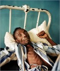 An AIDS patient