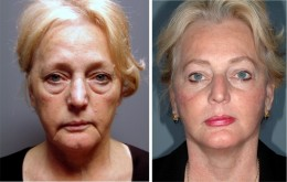 Cosmetic face lift - Before & After