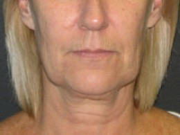 Before Cosmetic Face Lift Surgery