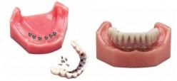Dentures - Dental Implants
