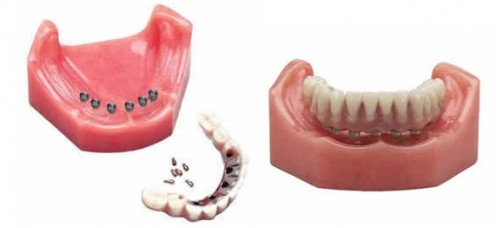 Dentures - Dental Implants