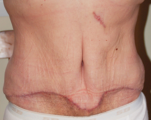 loose skin after gastric bypass surgery - A tummy tuck is in order.
