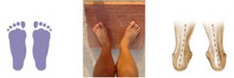 3. Weight too much on inside of feet (flat feet).