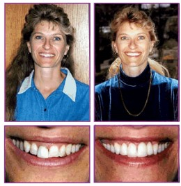 A Hollywood smile after a dental makeover