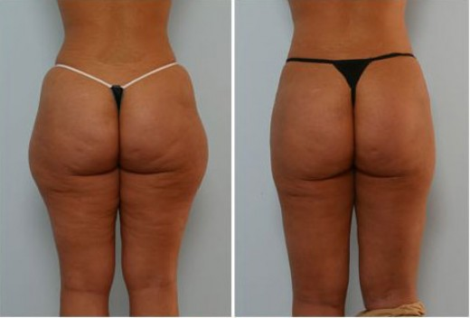 Liposuction of hips before and after the procedure is done.