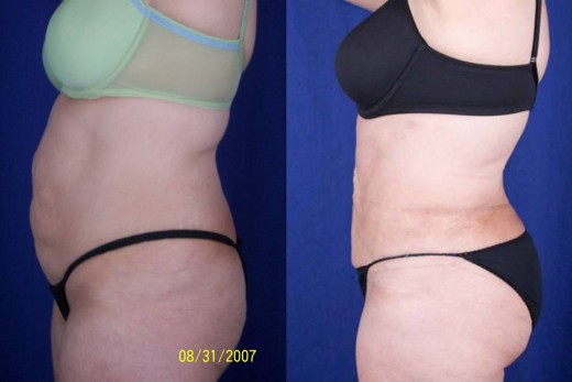 Liposuction of abdomen, thighs, and buttocks done using Tumescent technique.