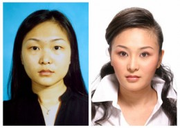 In before-and-after photo Hao Lulu's appearance was indeed radically altered, in particular her eyes, which were given double eyelids to give her a more occidental appearance. The color of her skin was also lightened.