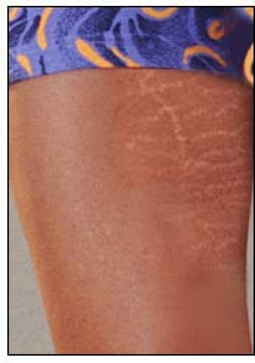 Guide on how to prevent and get rid of stretch marks for Why can t you get tattoos while pregnant