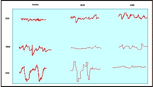 Electroencephalogram (EEG), electromyogram (EMG), and electrooculogram (EOG) show activity of the brain, muscles, and eyes during three different states: wakefulness, REM sleep, and slow-wave sleep (SWS). Image Source:http://www.biologyreference.com/