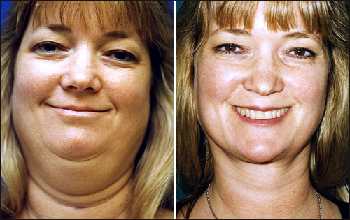 Successful face/chin liposuction. [plasticsurgery1.com]