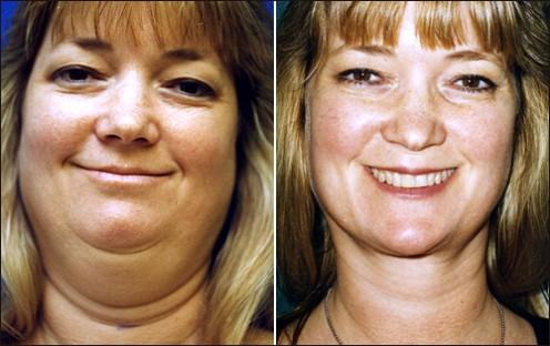 Successful face/chin liposuction. [plasticsurgery1.com]