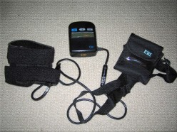 Bone Healing With EBI Bone Growth Stimulator