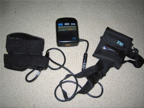 EBI bone growth stimulator