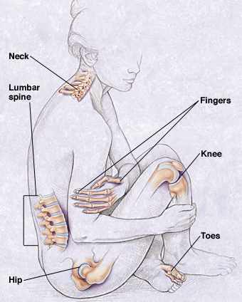 OA can be found in any of the body's movable joints.
