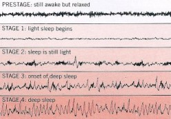 The stages of sleep recur in several cycles every night. Each stage has a distinctive brainwave pattern and the sequence and number of stages in a cycle vary.